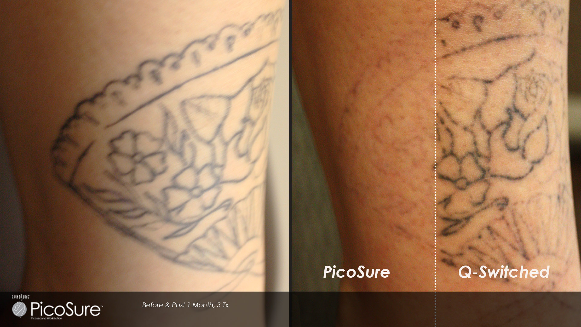 Results for Picosure tattoo removal maryland