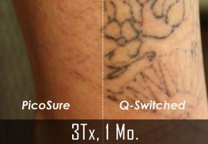 Renewal tattoo removal safe fast complete tattoo removal for Picosure tattoo removal maryland